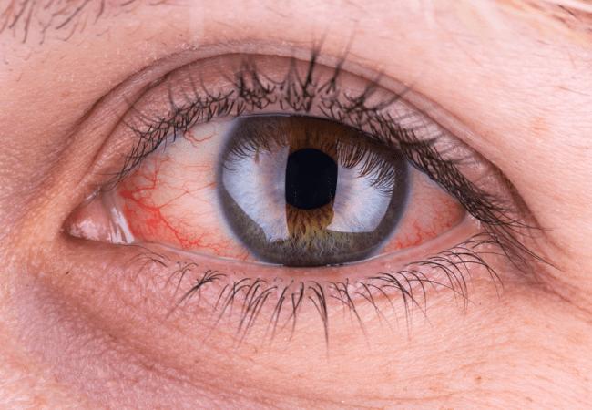 3cf8b804f34a Μάτια  9 αιτίες γιατί είναι κόκκινα - Healthview