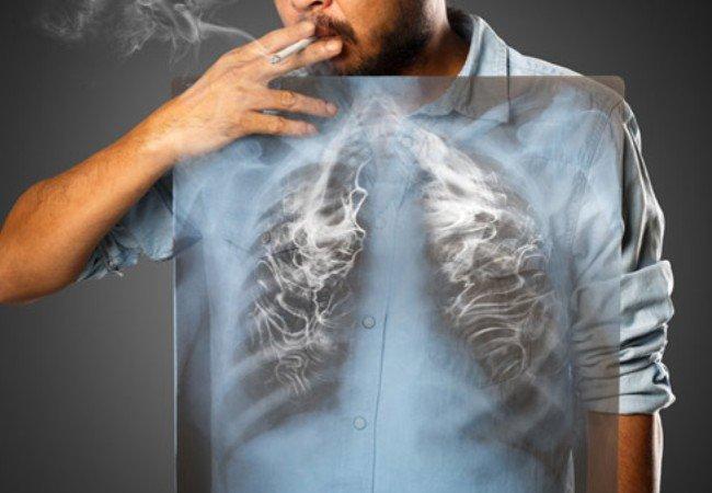Αποτέλεσμα εικόνας για κάπνισμα νικοτίνη