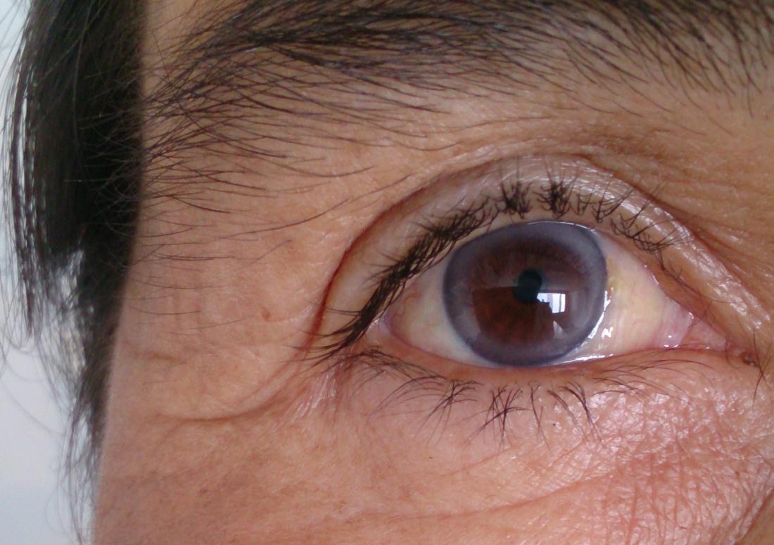 Μάτια: Πως μαρτυρούν την υψηλή χοληστερίνη