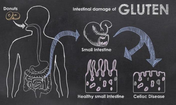 Κοιλιοκάκη: Ποιες είναι οι συχνότερες διατροφικές ελλείψεις;
