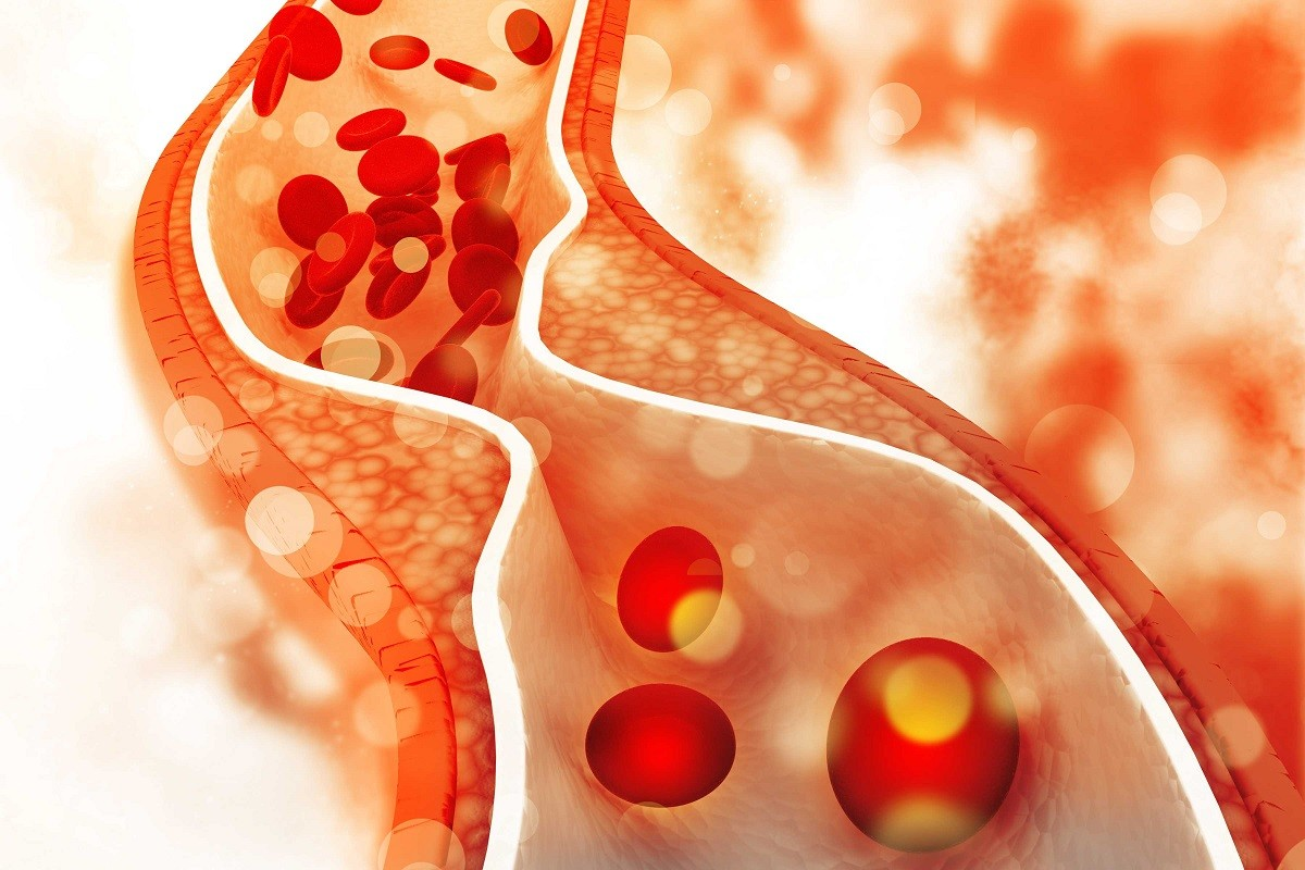 γραφικό που δείχνει την χοληστερίνη