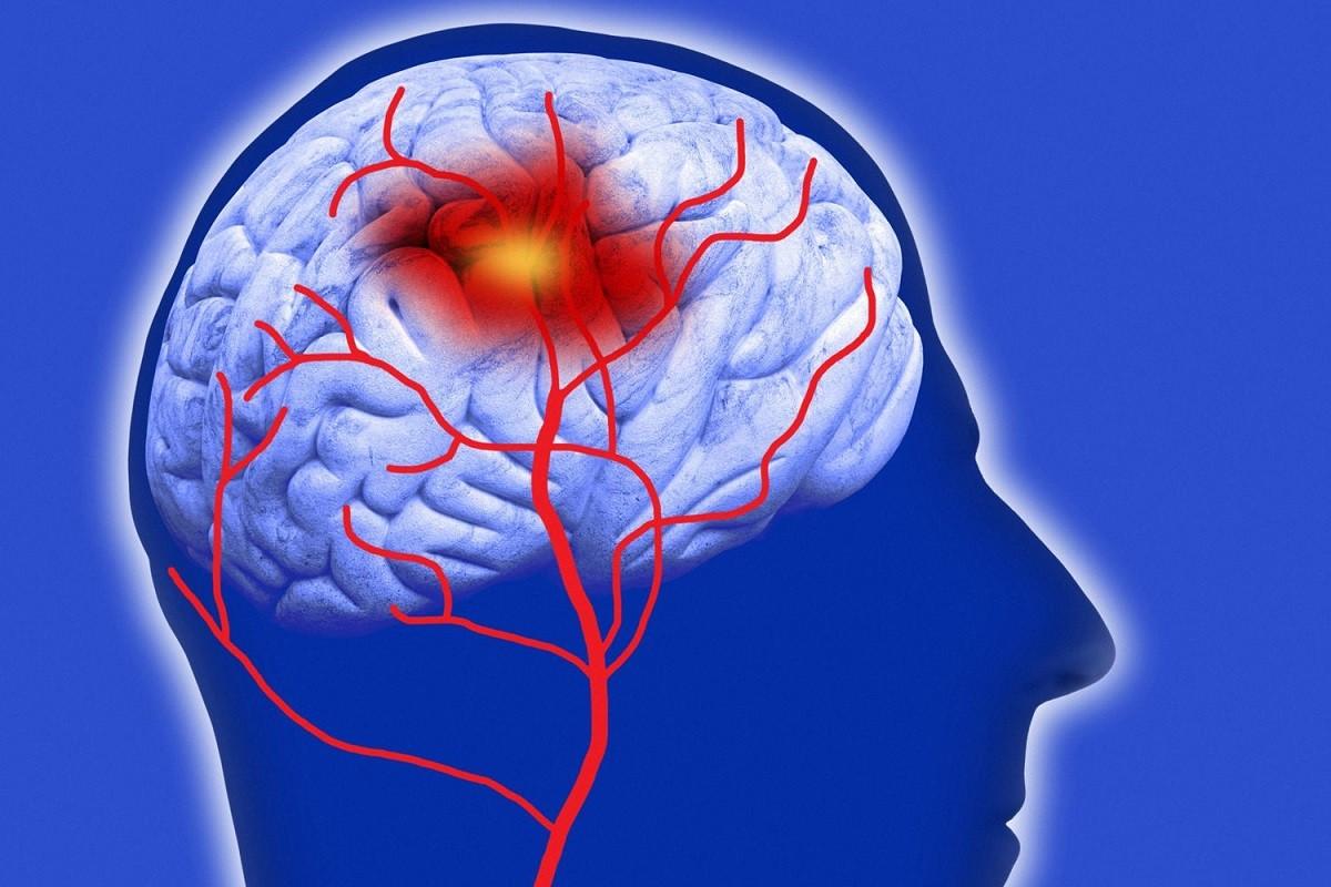 γράφημα που δείχνει το εγκεφαλικό