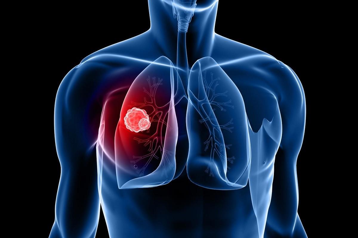 γράφημα που δείχνει πως είναι ο καρκίνος του πνεύμονα