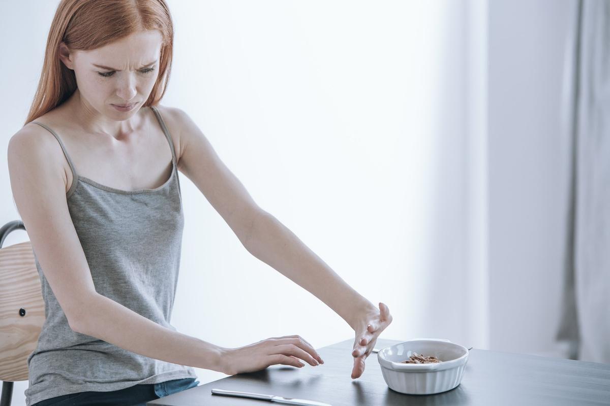 νεαρή γυναίκα με διατροφικές διαταραχές