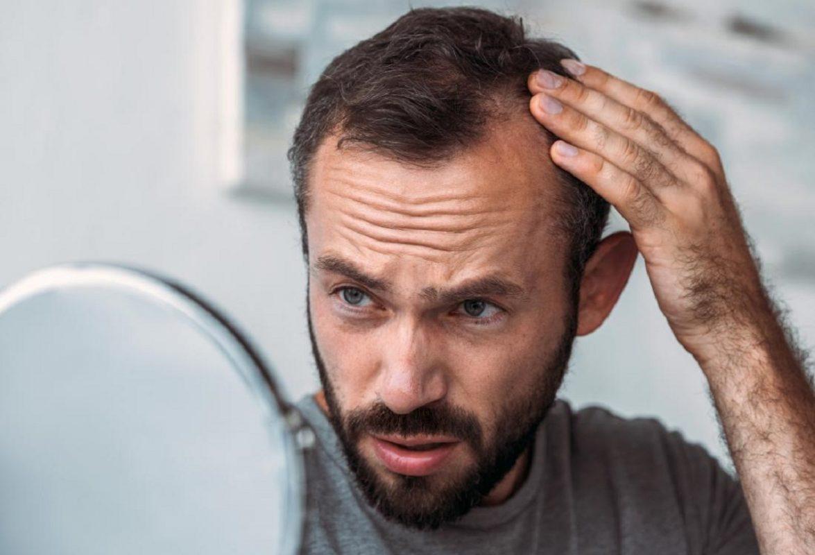 άνδρες κοιτάζοται στον καθρέφτη και πιάνουν τα μαλλιά τους για να δουν εάν έχουν τριχόπτωση