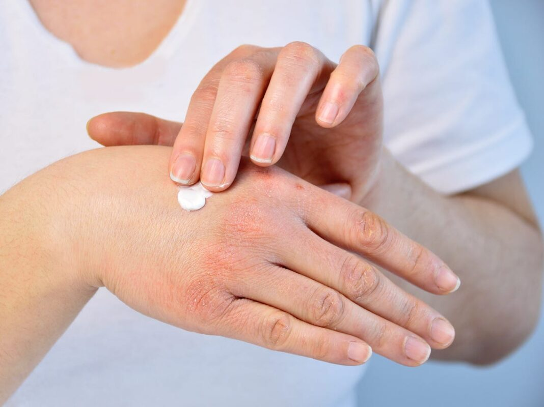 γυναίκα βάζει κρέμα στα χέρια της που έχουν ξηροδερμία