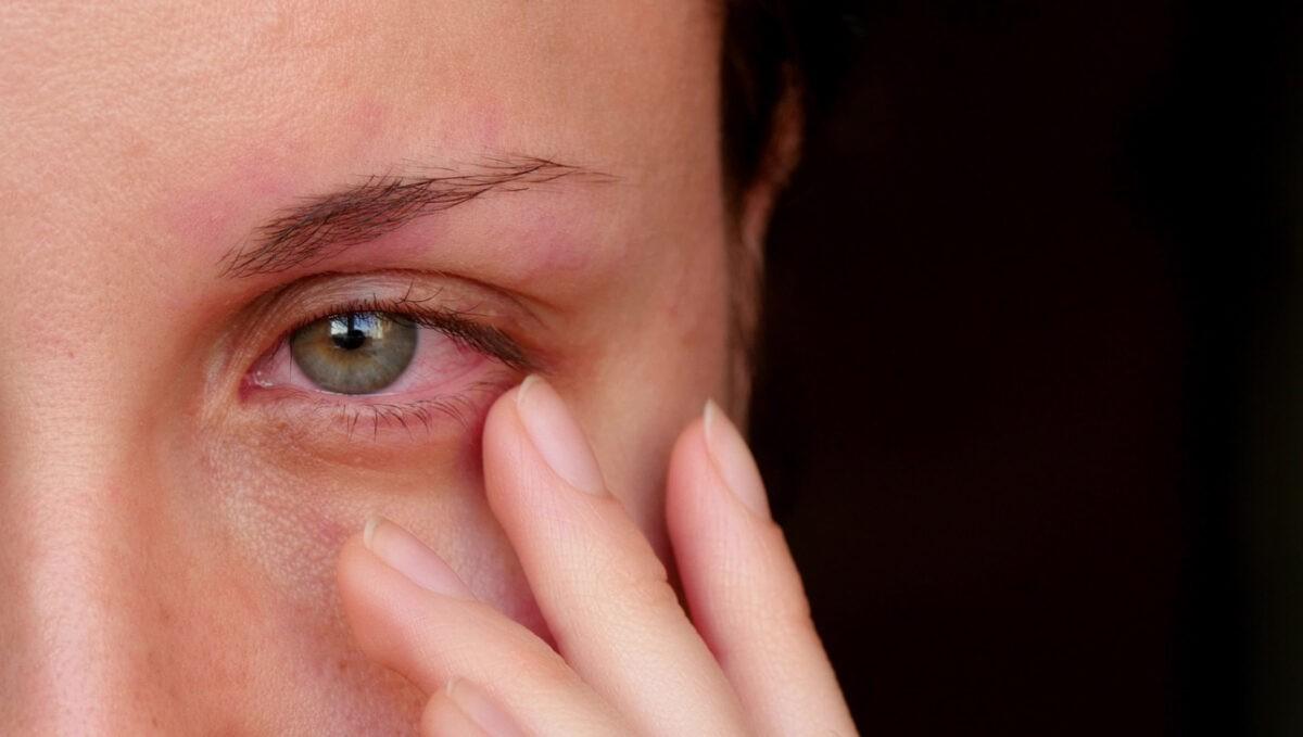 γυναίκα με κόκκινα μάτια