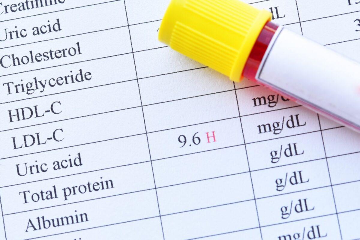 εξετάσεις που δείχνουν το επίπεδο στο ουρικό οξύ