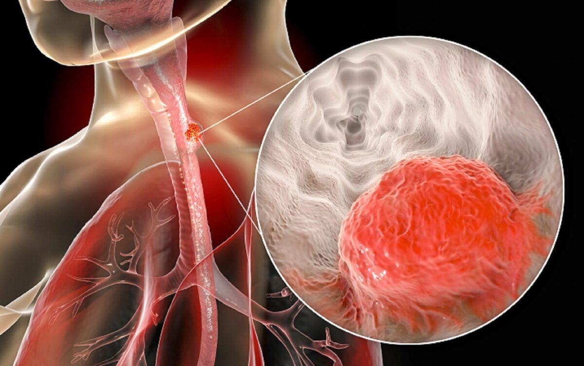 Γράφημα δείχνει πως είναι ο καρκίνος του οισοφάγου