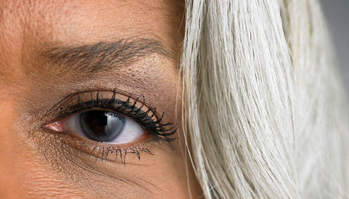 μάτια γυναίκας που έχει γλαύκωα