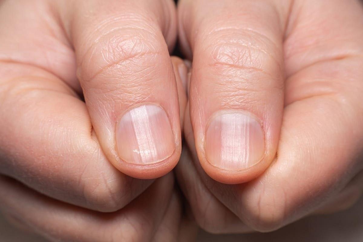 νύχια με ραβδώσεις που μπορεί να έχει προκαλέσει ο κορωνοϊός